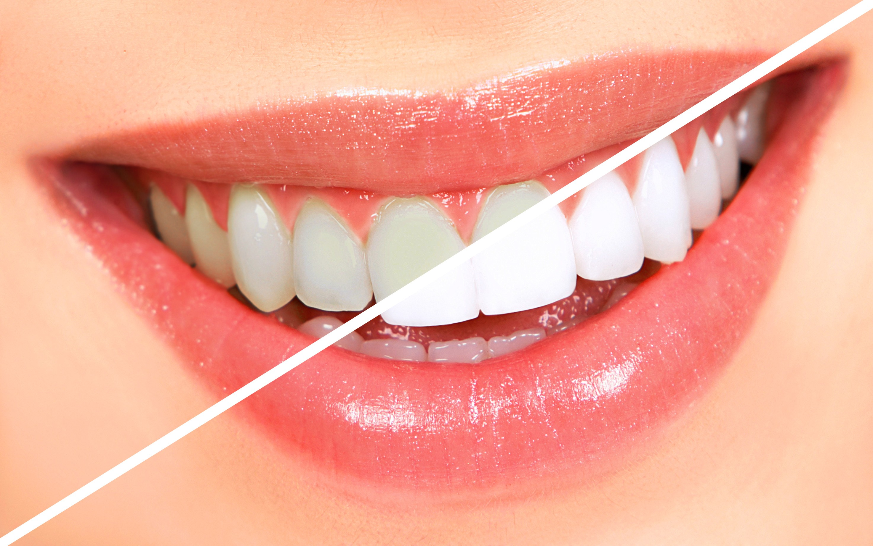 TEETH WHITENING – Welcome To Lana's Dental Care (239) 593-6488